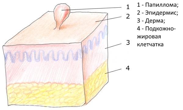папиллома под мышкой фото
