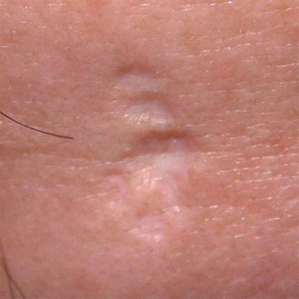 Фото: рубец на коже
