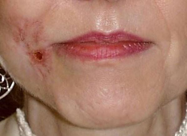 кровотечение из невуса