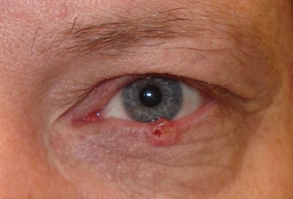 папиллома на слизистой глаза
