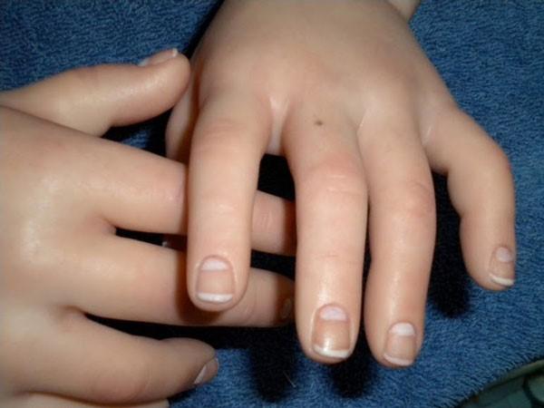 невус на пальце левой руки