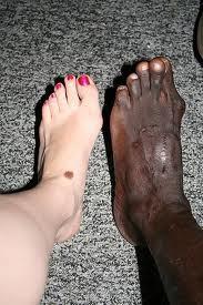 Родинки на ногах: чем могут навредить вам невусы на ногах
