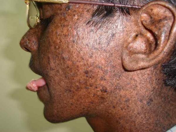 Пигментная ксеродерма кожи