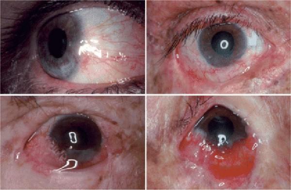 Глаза при пигментной ксеродерме