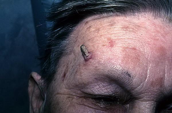 Роговая кератома на лице