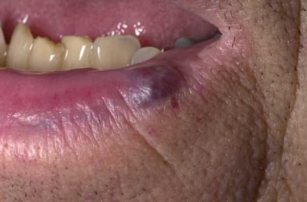 Сосудистая гемангиома на губе