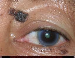 Чёрная бородавка на глазу