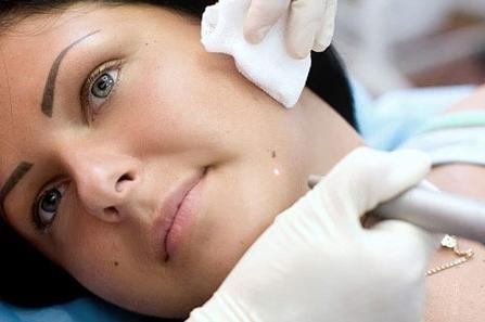 как удалить папилломы на лице