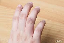 Бородавка на безымянном пальце