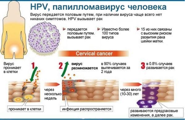 последствия заражения ВПЧ у женщин