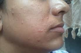вирус папилломы на коже