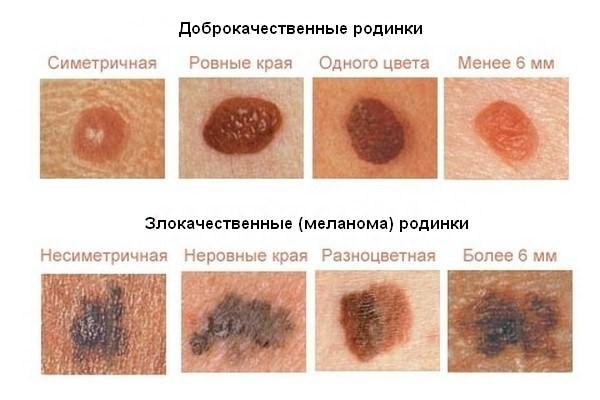 раковые новообразования