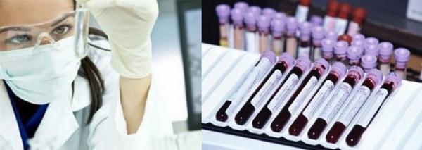 анализ на вирус папилломы человека