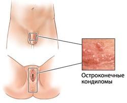 папиллома симптомы