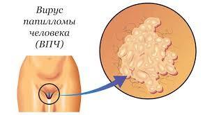 папиллома человека симптомы