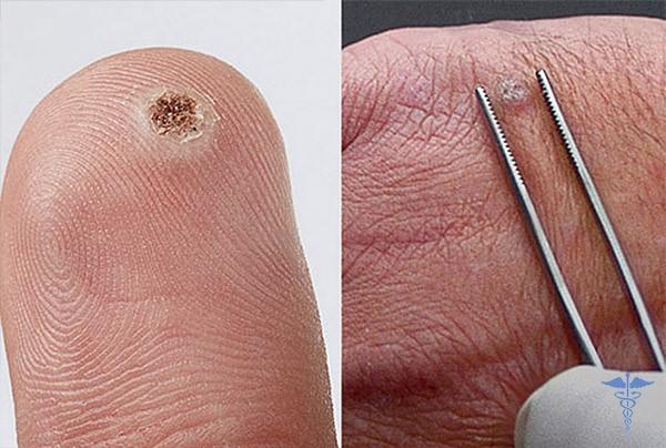 Фото папилломы на теле человека