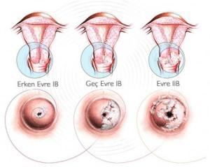 Осложнения у женщин при папилломавирусной инфекции