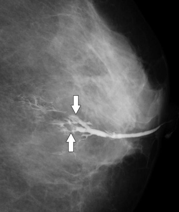 Папиллома молочной железы
