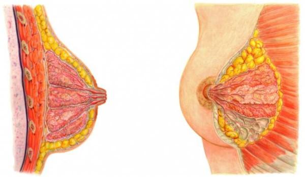 Болезни молочной железы у женщин