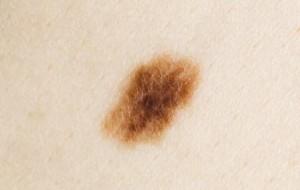 Почему вокруг родинки коричневое пятно?