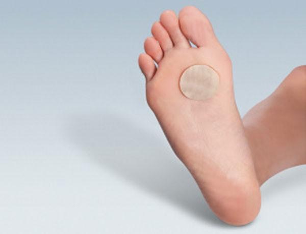 ватный диск, смоченный уксусом, прикладывают к наросту