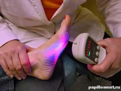 Фото процедуры лазерного удаления бородавки