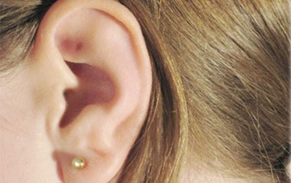 Фото: невус на ушной раковине