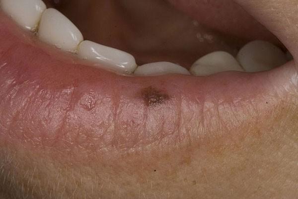 меланоцитарный невус